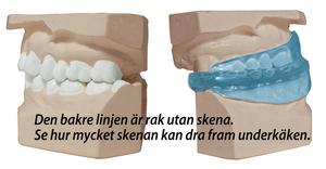 ReduZnore Anti Snarkskena inkl MegaVent Näsvidgare